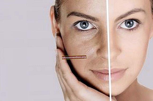 Hier erfahren Sie, wie Sie dunkle Ringe unter den Augen auf natürliche Weise entfernen.
