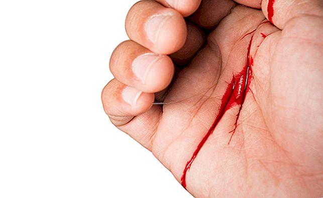 วิธีหยุดเลือดออกจากการตัดด้วยพริกไทย?