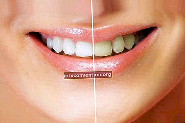 치아 미백 팁 : 효과적이고 자연 스럽습니다.